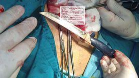 إنقاذ حياة مريض ابتلع سكين مطبخ كبيرا في الدقهلية