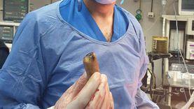 """طبيب يستخرج """"محمول"""" من بطن مريض: """"أول مرة أشوف حد بالع موبايل"""""""