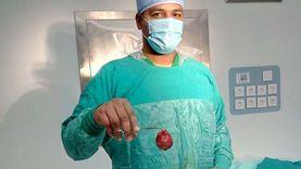أطباء مستشفى إسنا ينجحون في استئصال ورم ليفي يزن 500 جرام من رحم سيدة