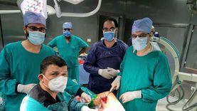 """إنقاذ مريض من بتر ساقه المصابة بـ""""الغرغرينا"""" في مستشفى طنطا التعليمي"""