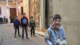 وجوههم مخيفة بمرض غريب.. الحكومة تتبني علاج الطفلين «أحمد ويوسف»