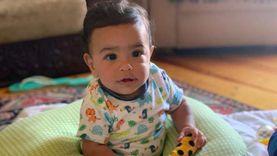 والد الطفل رشيد يكشف آخر تطورات حالته الصحية بعد إصابته بخلع في قدميه