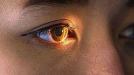 حال اتهامه.. عقوبة طبيب مسؤول عن تغيير لون عين فتاة وإصابتها بالعمى
