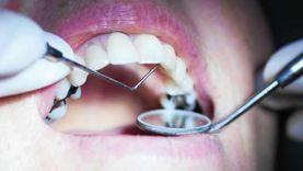 أطباء عن تساقط أسنان المتعافين: ربما كورونا السبب
