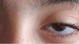 خلال شهرين.. إجراء 275 جراحة عيون لتقليل قوائم الانتظار بالدقهلية