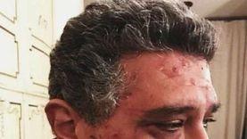 يوسف ماجد الكدواني يوضح حقيقة إصابة والده بمرض جلدي: «صورة قديمة»