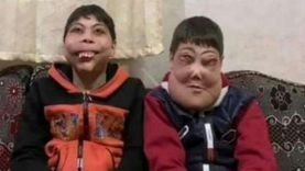 مأساة أحمد ويوسف مع الوجه المتضخم: «واحد حاول يخلع وشه فاكره ماسك»
