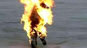 طفل يشعل النيران في جسده