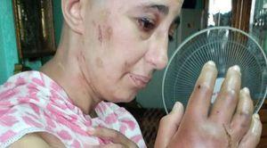زوجة تتعرض للتعذيب على يد زوجها
