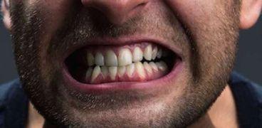 الجز على الأسنان