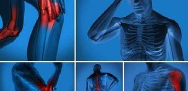 صور أشعة متعلقة بإحدى الحالات المصابة