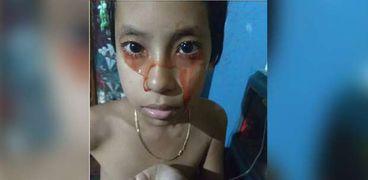 طفلة تبكي وتتعرق دماء بسبب حالة مرضية غريبة