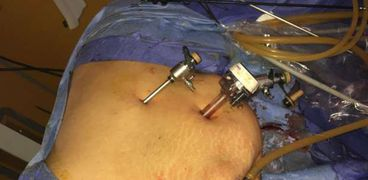 معهد جنوب مصر للأورام ينقذ حياة مريض بسرطان الكلى باستخدام منظار البطن الجراحي