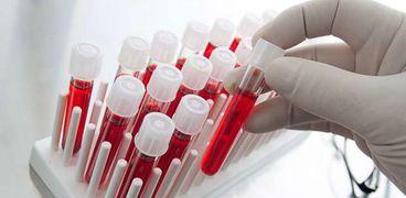 سعر تحليل صورة الدم الكاملة