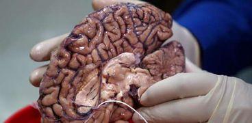 الدماغ البشرى
