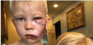 مواقف أظهرت شجاعة الأطفال