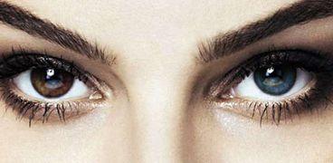 تغيير لون العين بالليزر وبشكل دائم
