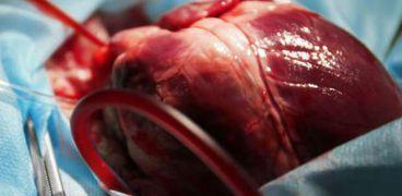 عملية القلب المفتوح .. صورة أرشيفية