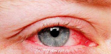 التهاب العيون