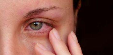 ابتكار علمي مرتبط بالعين