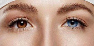 لون العين وسيلة لتحديد الأمراض