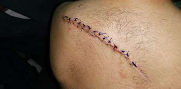 الجراحة