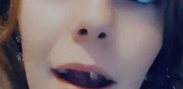 مرض نادر يحول فم مراهقة إلى طفلة رضيعة