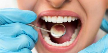 ناول الأطعمة التي تحتوي على السكريات والنشويات بكثرة يؤدي لتسوس الأسنان