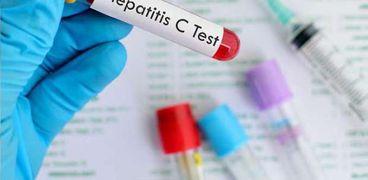 """بشرى لمرضى """"C"""".. علاج مصري جديد بنسبة شفاء 97%"""