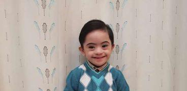 مروان أصغر موديل مصاب بمتلازمة دوان