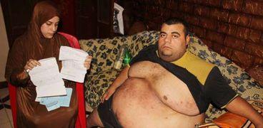 محمود سمير، مريض السمنة المفرضة الذي عُولج على نفقة الدولة