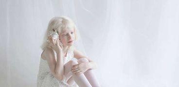 طفلة مصابة بالمهق