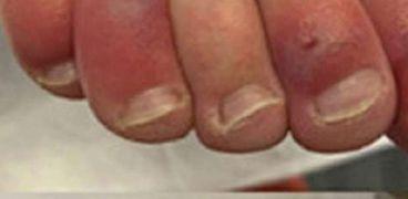 أصابع كوفيد