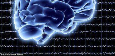 تعرض المخ لموجات فوق صوتية يساعد في علاج مرض ألزهايمر