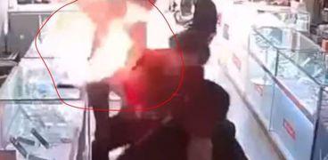 لحظة انفجار هاتف في وجه رجل أثناء استبدال البطارية