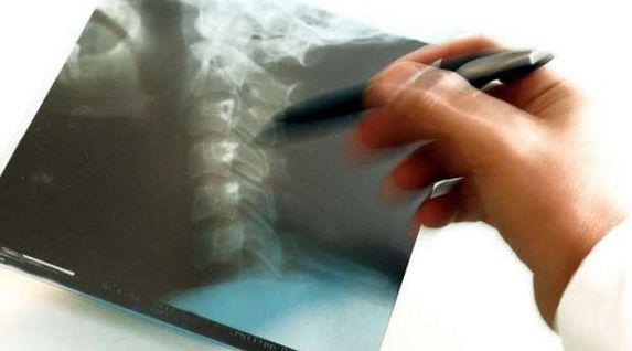 متخصص في أمراض العظام: الجلوس بشكل خاطئ يسبب الانزلاق الغضروفي