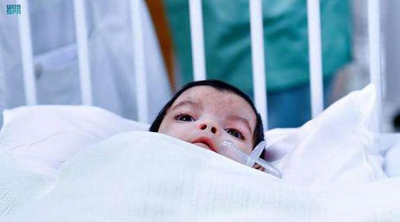 نجاح فصل توأم «عائشة» النادر: العملية استغرقت أكثر من 7 ساعات (فيديو)