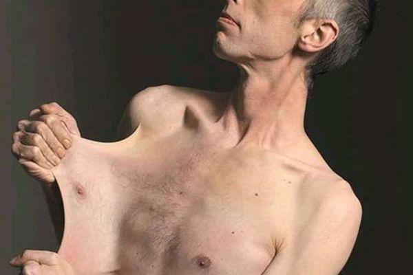 «يفصل جلده عن جسده»  سر حزين وراء صاحب أكثر بشرة مطاطية في العالم