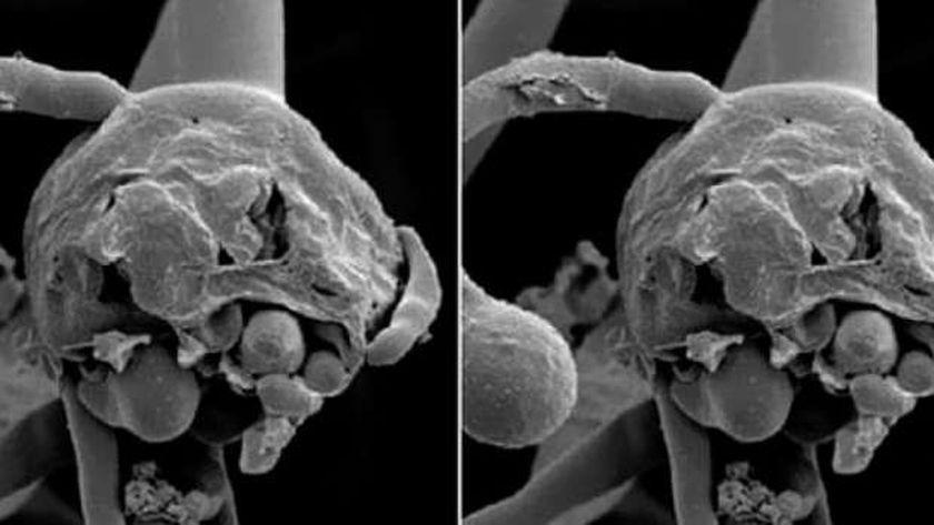 ١١ إصابة جديدة و50 منذ بداية كورونا.. تفاصيل ظهور الفطر الأسود بالفيوم