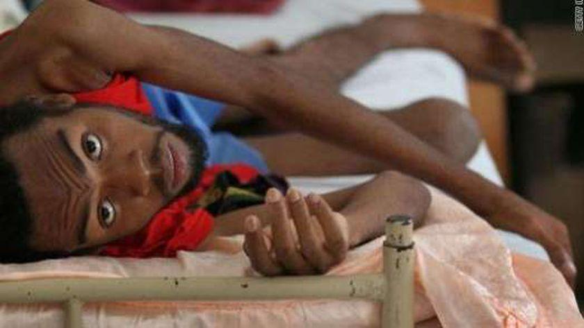 """مرض """"السل"""" أصبح مشكلة صحية خطيرة في غانا"""