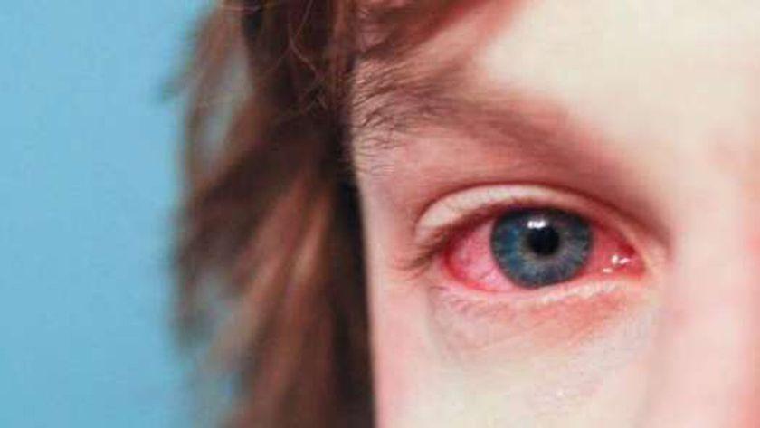 صورة أرشيفية لطفلة تعاني من المياه الزرقاء