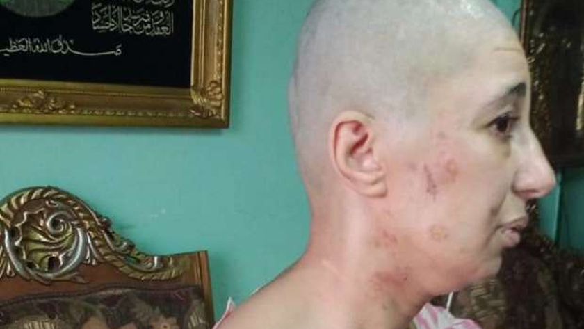 صورة 15 سنة حلاقة زيرو وتعذيب وتسول.. معاناة «شيماء» مع زوجها «فيديو» – حوادث