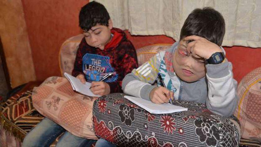 يوسف وأحمد الطفلين ذات الوجه المتضخم