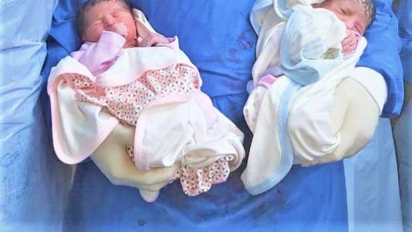 أول ولادة بعزل جامعة المنصورة