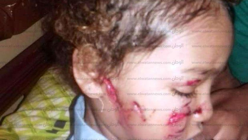 بينهم إصابات خطيرة بالوجه.. كلب مسعور يعقر 23 طفلاً في 4 قرى بالفيوم