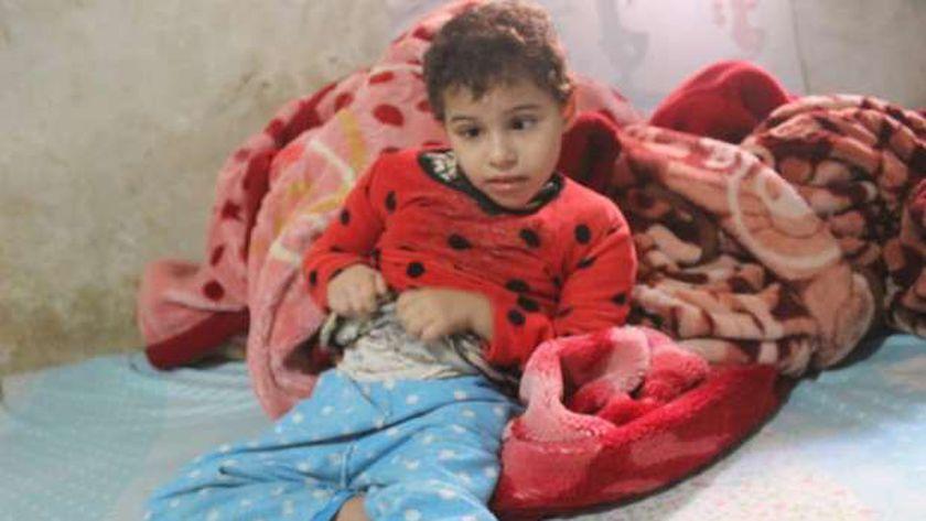 الطفلة سومة رمضان، التي تعاني من ضمور في المخ